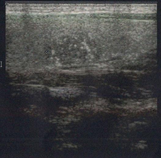 10.19-figure8